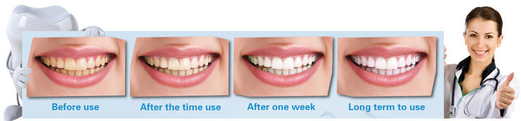 Home-Kits-instant-teeth-whitening-perfect-white-teeth-effect