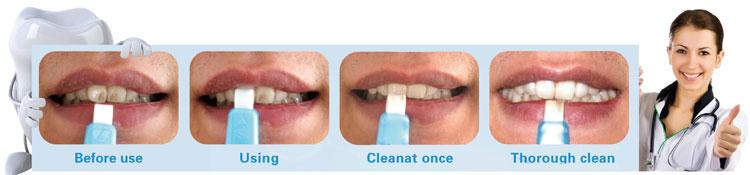 effective-home-teeth-whitening-kit