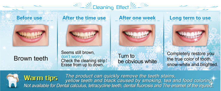 Professional Teeth Whitening Kits at Home,power cleaning effection
