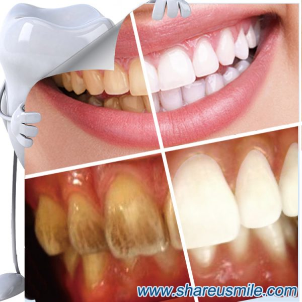 shareusmile SH005-teeth cleaning kit-Remove plaque stains- home dental cleaning kits- teeth stain erasers and tooth polishing tools