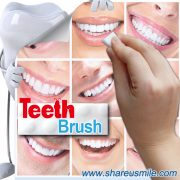 MTB04 brighter-smile-the-best-teeth-whitening-strips-for-you