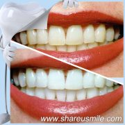 Simple and Effective Cleaning For Teeth Oral Hygiene Products
