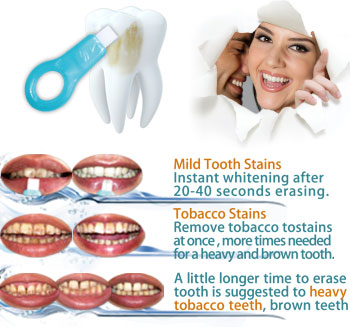 What-type-of-tooth-stains-can-be-removed-Xiamen-Share-Nano-magic-teeth-clean-kit