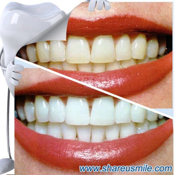 shareusmile SH005E-Teeth Cleaning Kit- Whiten Teeth Quickly Home Dental Whitening Kit
