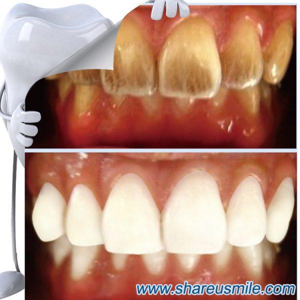 shareusmile SH0712-Teeth Cleaning Kit–Natural Teeth Whitening Options That Work