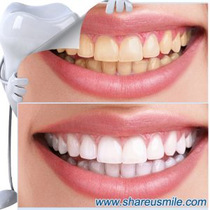 shareusmile SH102-Teeth Cleaning Kit-Regular dental cleanings will lead you to cleaner, healthier teeth