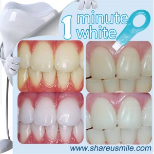 shareusmile SH215-Teeth Cleaning Kit-Private-Label-Usa-Wholesale-Whitening-Tooth--perfect-white-teeth