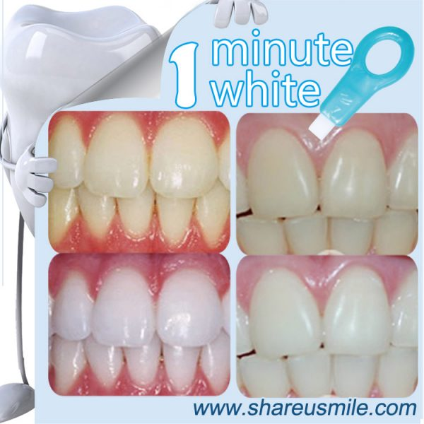 shareusmile SH215-Teeth Cleaning Kit-Private-Label-Usa-Wholesale-Whitening-Tooth–perfect-white-teeth