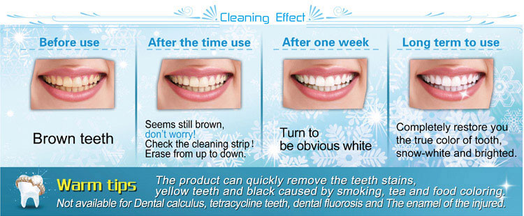 teeth-whitening-home-kit-effective-remove-the-teeth-stains