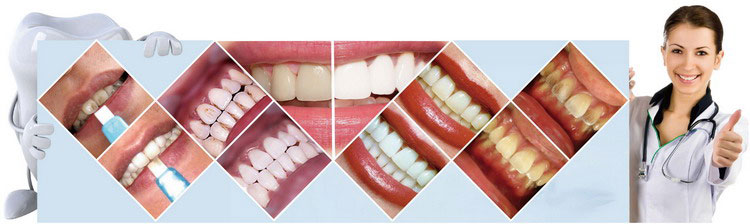 whiten various teeth BY New Creative Products shareusmile Dental Whitening kit with custom logo