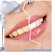 shareusmile SH003-teeth cleaning kit-Tools For a Cleaner Mouth