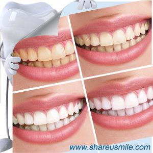 shareusmile SH007-Innovative Teeth Cleaning Kit-Only Water magic smile teeth cleaning kit tooth brush most effective teeth whitening