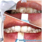 shareusmile SH012-Teeth Cleaning Kit – Instant Teeth Whitening Advanced Kit for good oral hygiene.