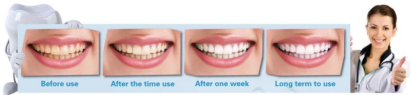 美佳欣洁牙绵效果-快速美白牙齿-神奇牙齿清洁刷烟牙一擦白烟牙克星使用对比图
