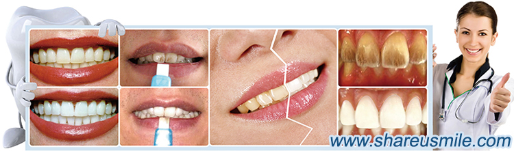 shareusmile Magic teeth cleaning kit clean tartar with water only quickly remove stains and pigments on the enamel