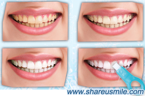 Teeth-cleaning-kit-cleaning-way-for--removing-teeth-tartar-from-shareusmile-news