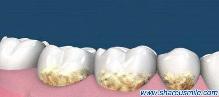 Why to clean your teeth Teeth-get-decayed-when-the-bacteria-that-lives-in-your-mouth-sticks-to-your-teeth news from shareusmile