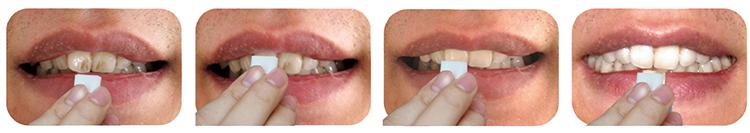 how--to-use-magic-teeth-cleaning-strips-sponge
