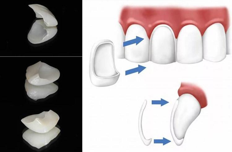 Teeth whitening method Full ceramic crowns/porcelain veneers