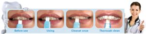 shareusmile effective home teeth whitening kit